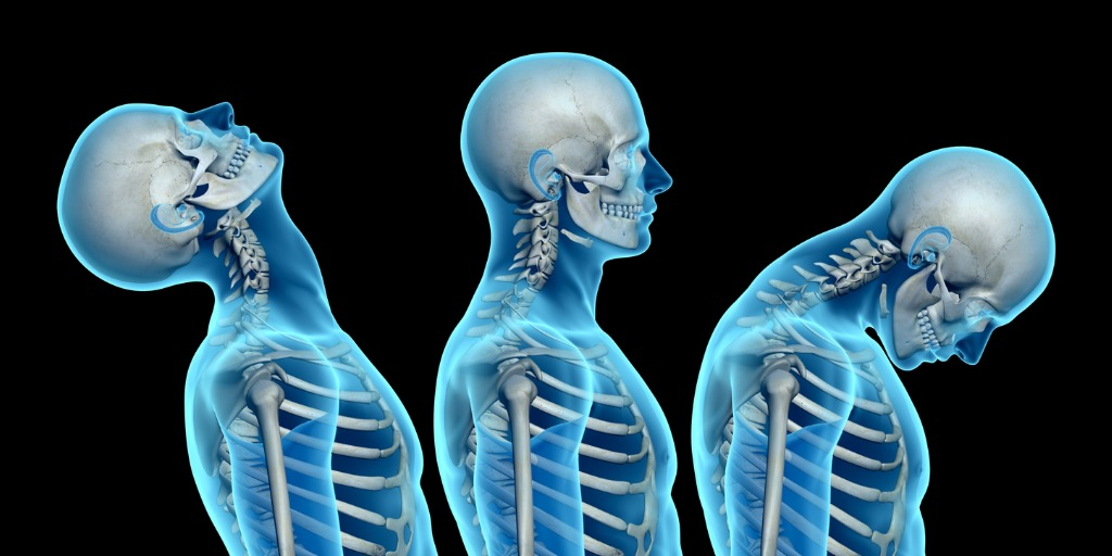 anatomy-of-human-body-showing-neck-injuries-with-whiplash-effect
