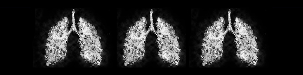 x-ray of smoker's lungs